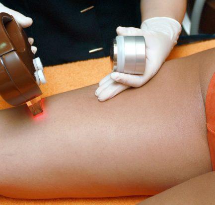 Come fare la depilazione laser a casa
