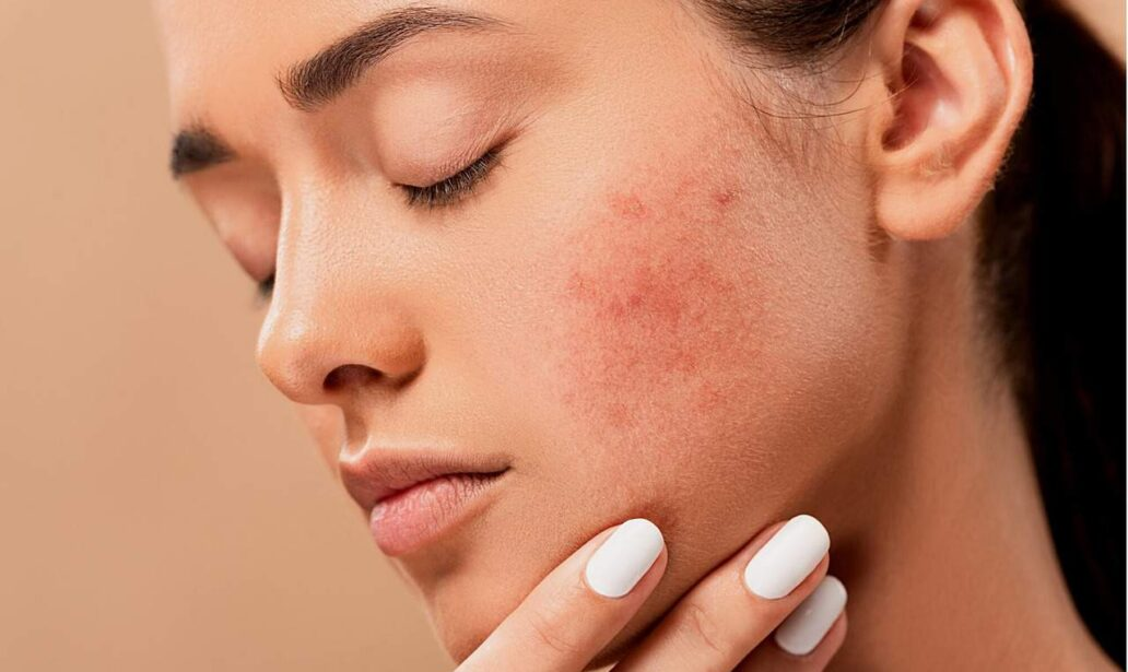 Pelle acneica: tutto quello che devi sapere sul perossido di benzoile
